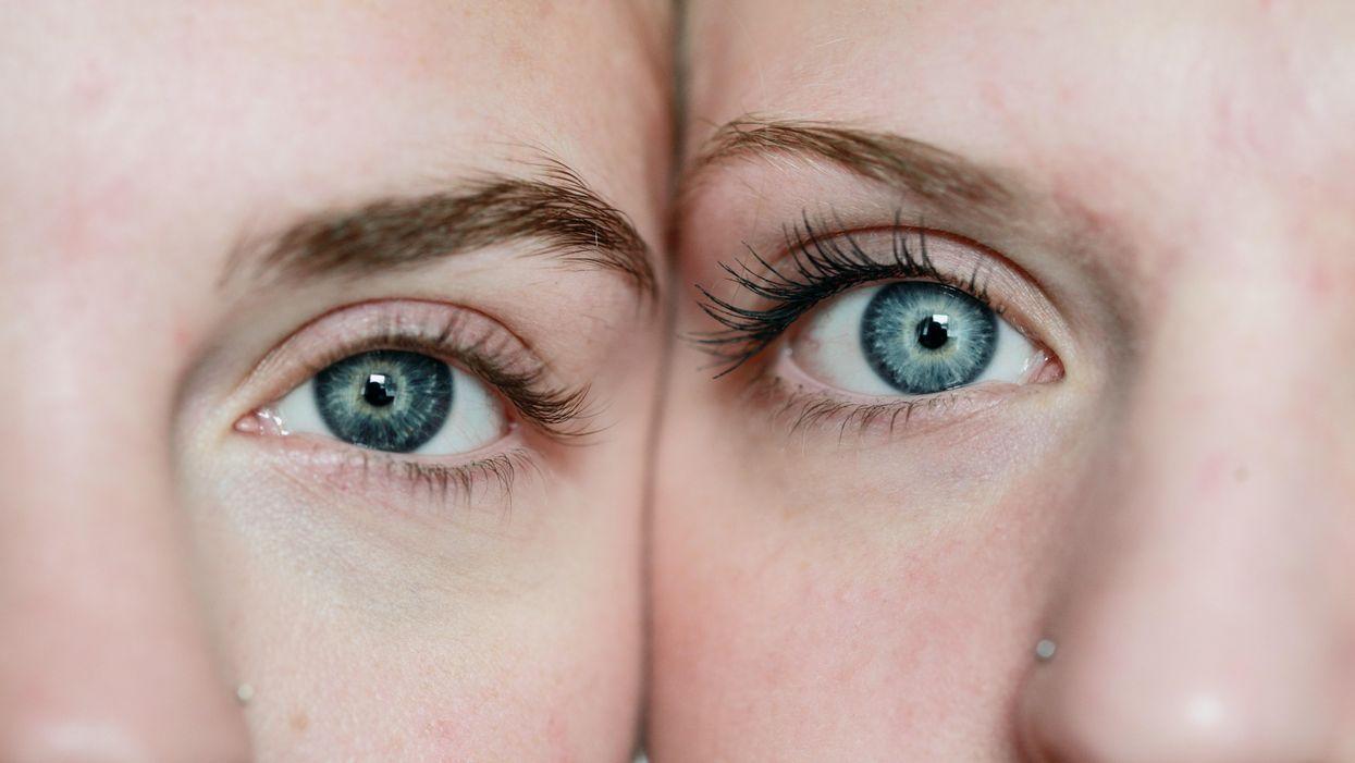 Egy ikerpár szeme